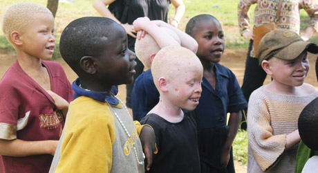 Albino children